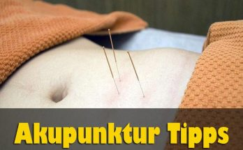 Akupunktur Tipps